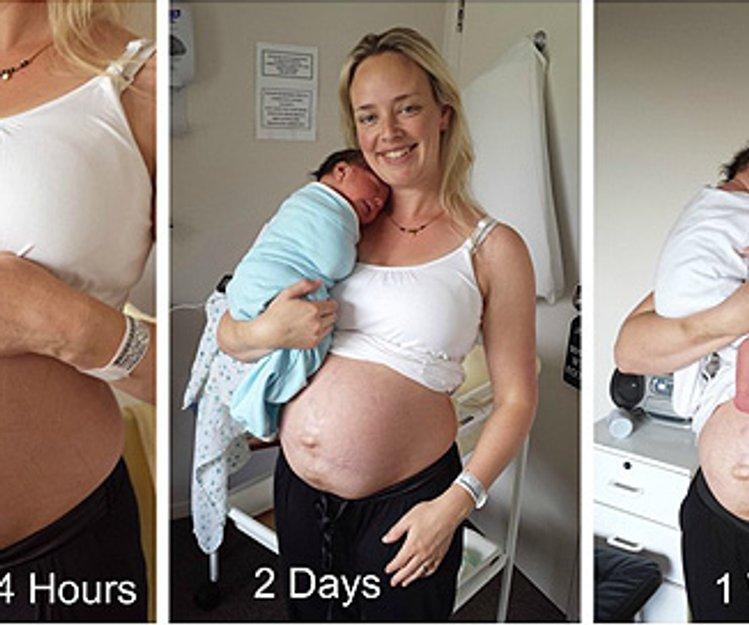 Sie können nach einem Kaiserschnitt Gewicht verlieren