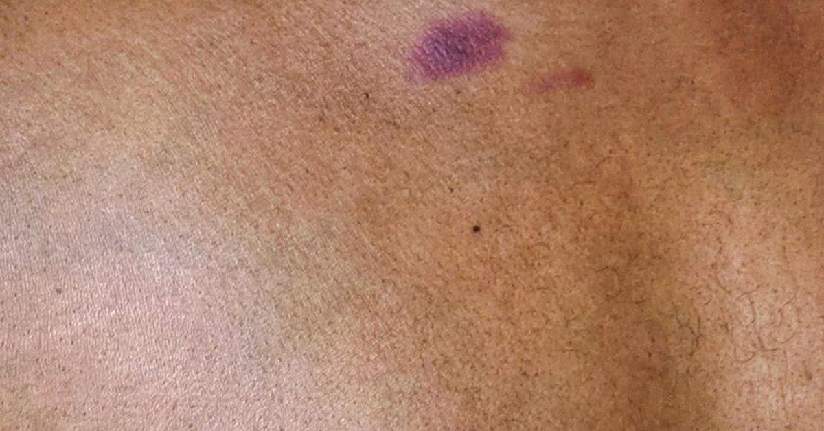 Roter fleck auf der brust