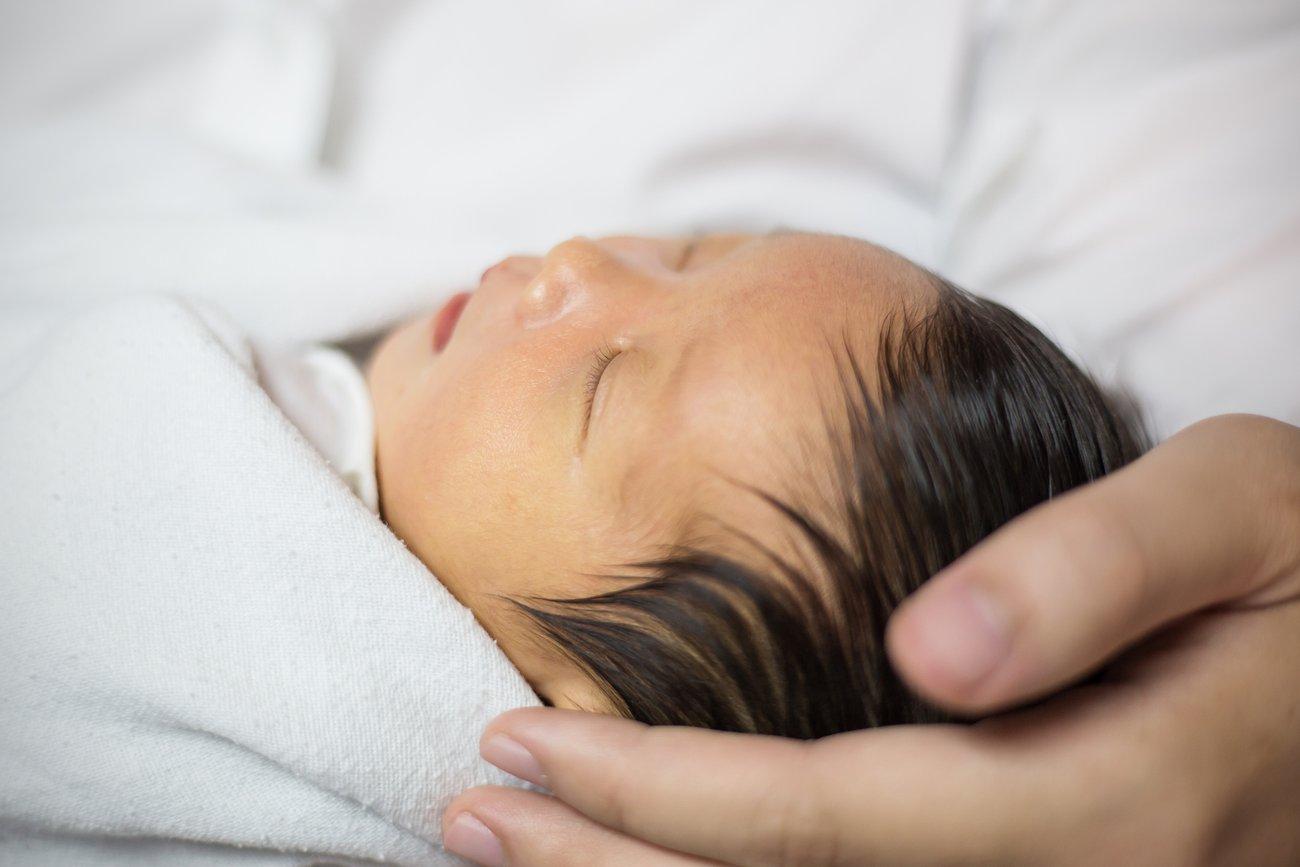 Die Gelbsucht trifft viele Neugeborene.