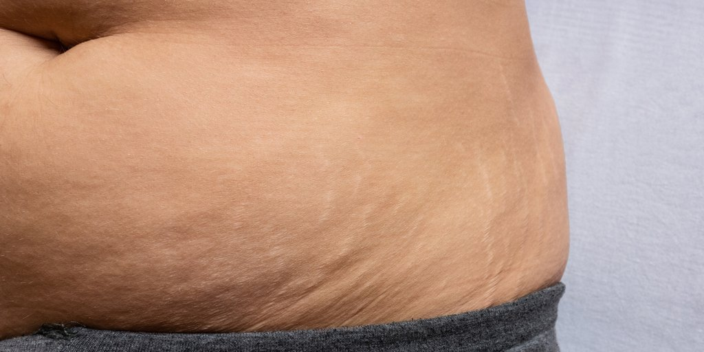Wird nicht schwanger immer bauch dicker aber Bauch bei